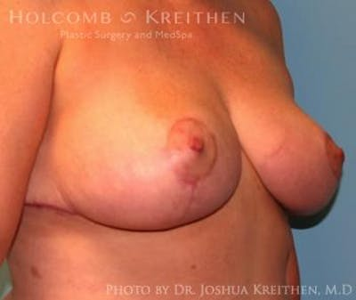Breast Reduction Gallery - Patient 6276563 - Image 4