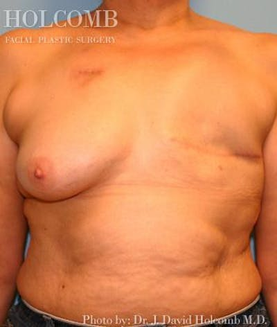 Breast Reconstruction Gallery - Patient 6276566 - Image 1