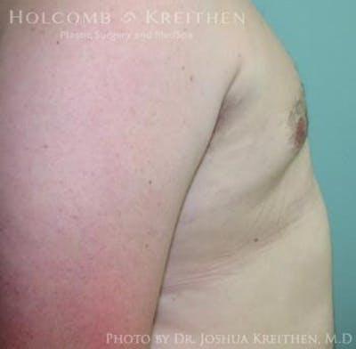 Gynecomastia Gallery - Patient 6276561 - Image 4