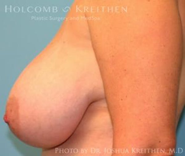 Breast Reduction Gallery - Patient 6276563 - Image 5