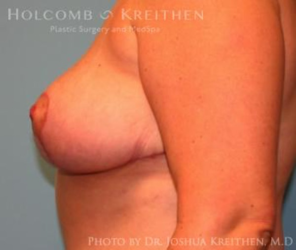Breast Reduction Gallery - Patient 6276563 - Image 6