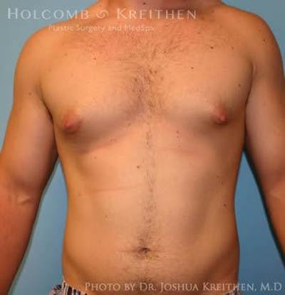 Gynecomastia Gallery - Patient 6276565 - Image 2