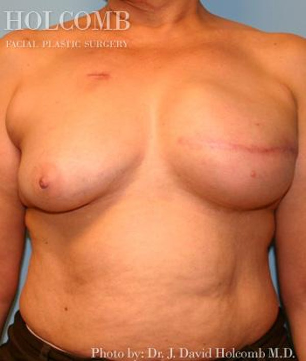 Breast Reconstruction Gallery - Patient 6276566 - Image 3