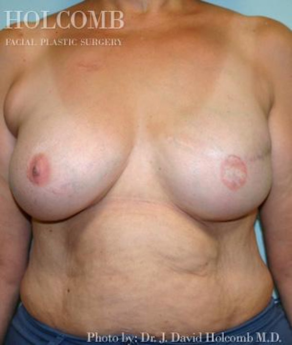 Breast Reconstruction Gallery - Patient 6276566 - Image 4