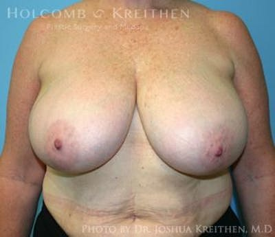 Breast Reduction Gallery - Patient 6276572 - Image 1