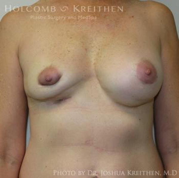 Breast Revision Gallery - Patient 6276571 - Image 1