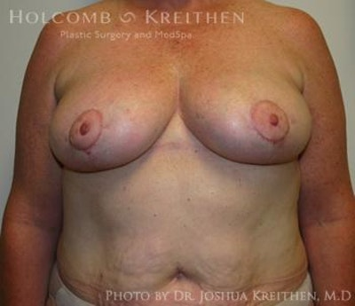 Breast Reduction Gallery - Patient 6276572 - Image 2
