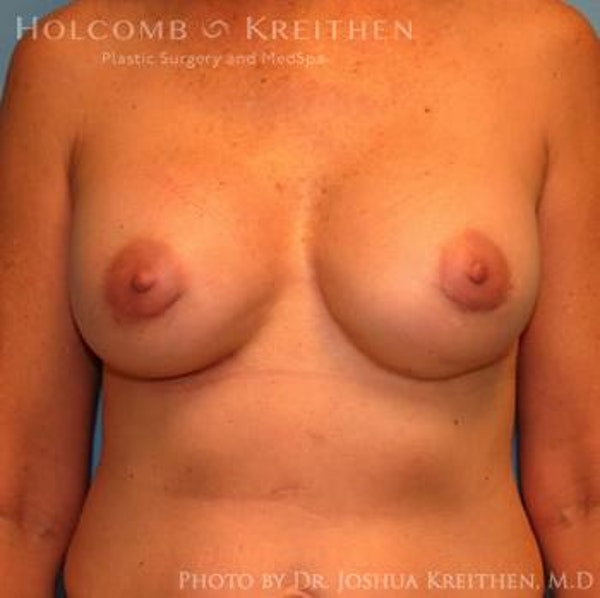 Breast Revision Gallery - Patient 6276571 - Image 2