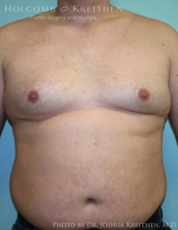 Gynecomastia Gallery - Patient 6276569 - Image 1