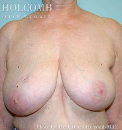 Breast Reconstruction Gallery - Patient 6276568 - Image 1
