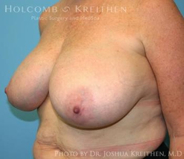 Breast Reduction Gallery - Patient 6276572 - Image 3