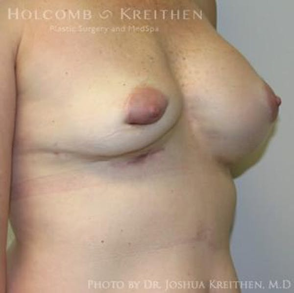 Breast Revision Gallery - Patient 6276571 - Image 3
