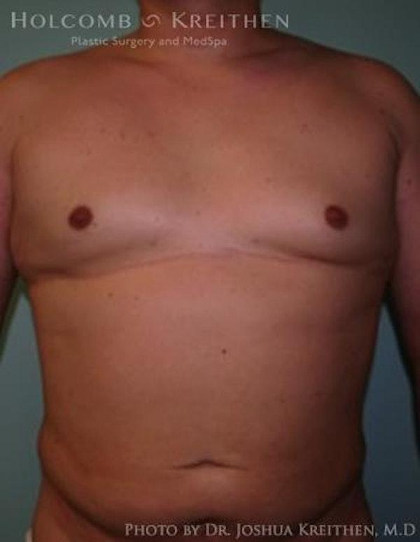 Gynecomastia Gallery - Patient 6276569 - Image 2