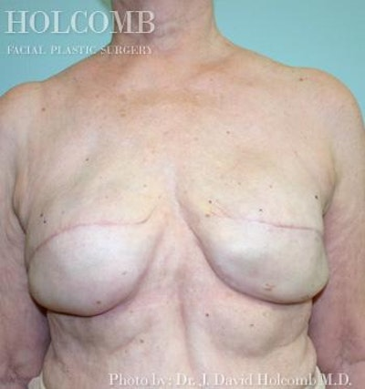 Breast Reconstruction Gallery - Patient 6276568 - Image 2