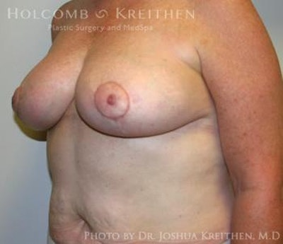 Breast Reduction Gallery - Patient 6276572 - Image 4