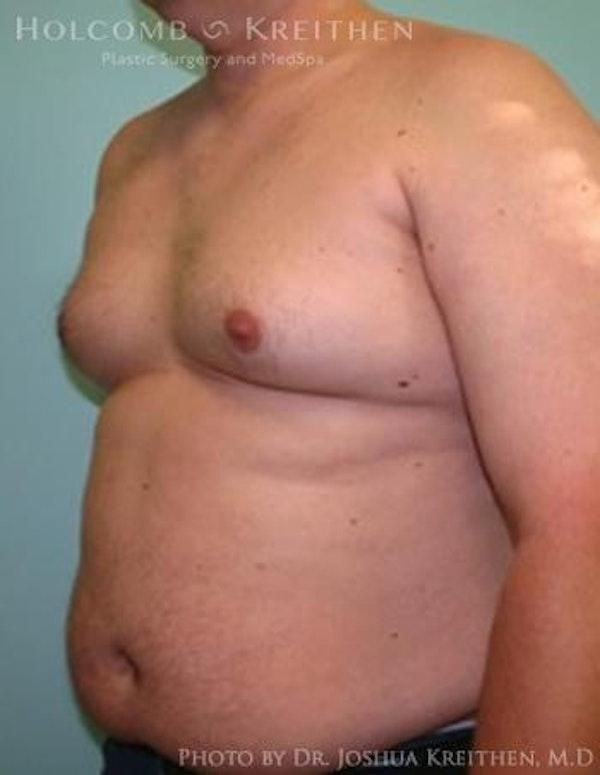 Gynecomastia Gallery - Patient 6276569 - Image 3