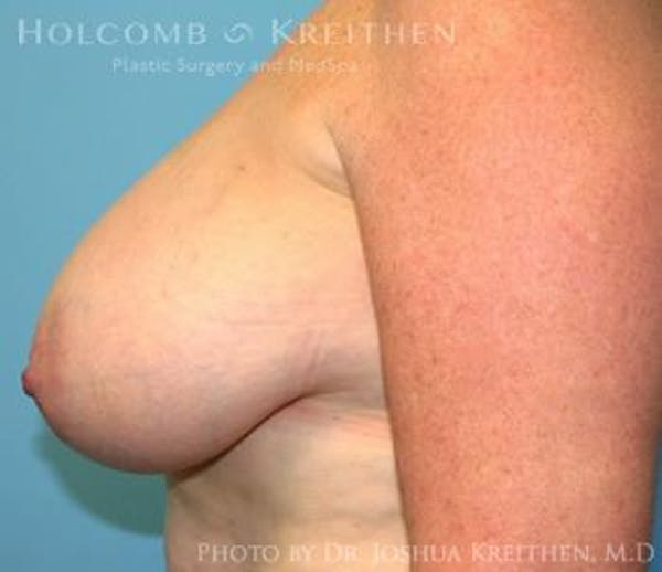 Breast Reduction Gallery - Patient 6276572 - Image 5