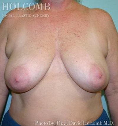 Breast Reconstruction Gallery - Patient 6276573 - Image 1