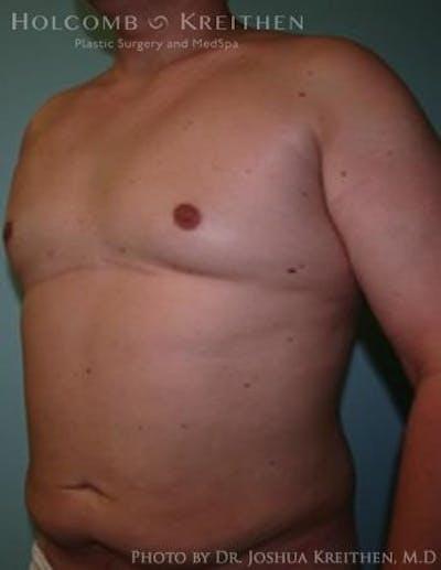 Gynecomastia Gallery - Patient 6276569 - Image 4