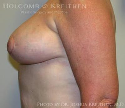 Breast Reduction Gallery - Patient 6276572 - Image 6
