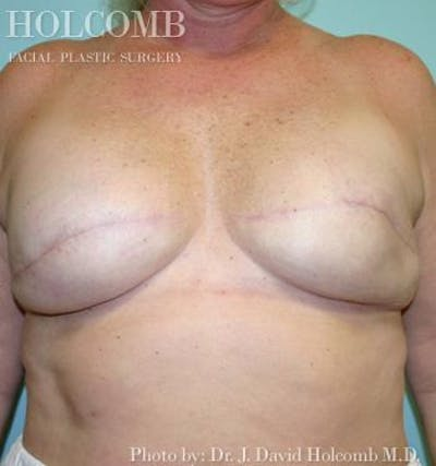 Breast Reconstruction Gallery - Patient 6276573 - Image 2