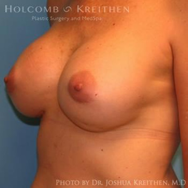 Breast Revision Gallery - Patient 6276571 - Image 6