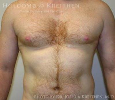 Gynecomastia Gallery - Patient 6276577 - Image 4