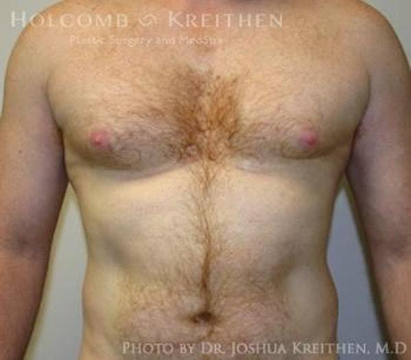 Gynecomastia Gallery - Patient 6276577 - Image 1