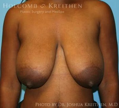 Breast Lift Gallery - Patient 6276578 - Image 6