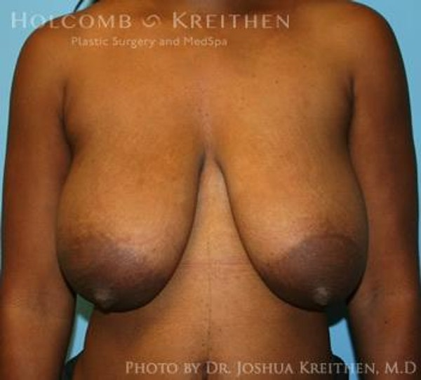 Breast Lift Gallery - Patient 6276578 - Image 1