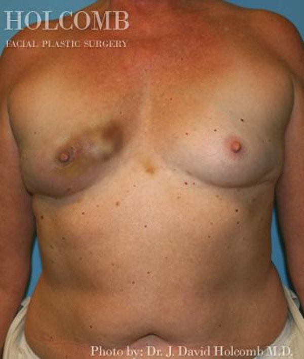 Breast Reconstruction Gallery - Patient 6276575 - Image 1