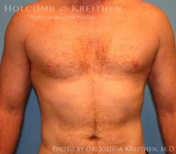 Gynecomastia Gallery - Patient 6276577 - Image 2