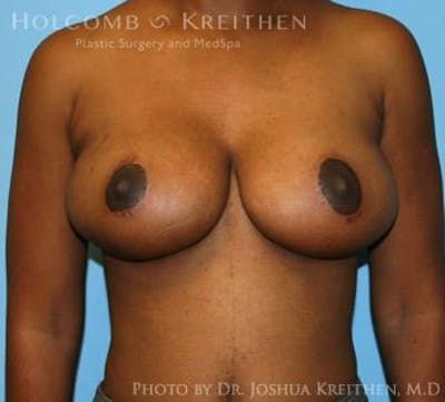 Breast Lift Gallery - Patient 6276578 - Image 2