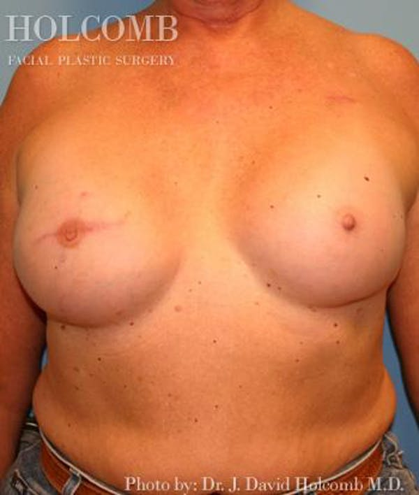 Breast Reconstruction Gallery - Patient 6276575 - Image 2