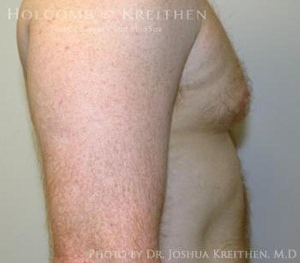 Gynecomastia Gallery - Patient 6276577 - Image 3