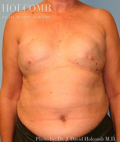 Breast Reconstruction Gallery - Patient 6276576 - Image 1