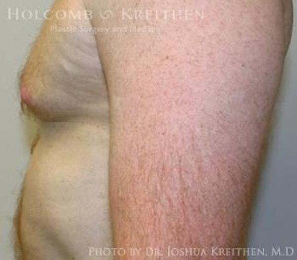 Gynecomastia Gallery - Patient 6276577 - Image 5