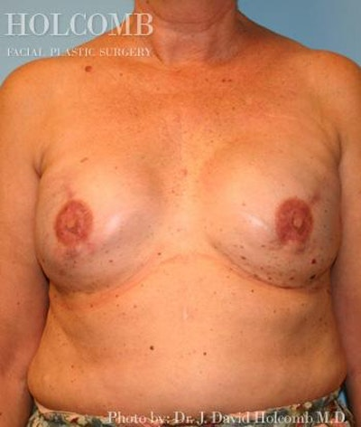 Breast Reconstruction Gallery - Patient 6276576 - Image 2