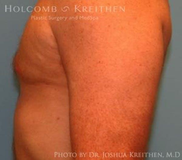 Gynecomastia Gallery - Patient 6276577 - Image 6