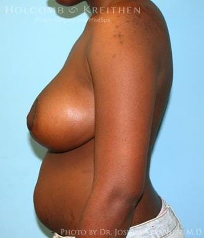 Breast Reduction Gallery - Patient 6276579 - Image 6