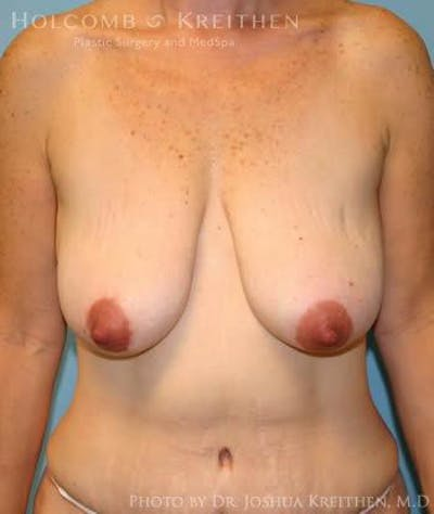 Breast Lift Gallery - Patient 6276584 - Image 1
