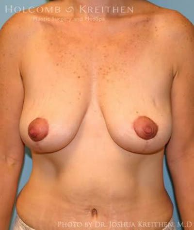 Breast Lift Gallery - Patient 6276584 - Image 2