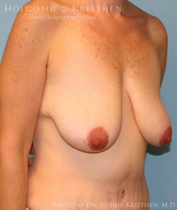 Breast Lift Gallery - Patient 6276584 - Image 3