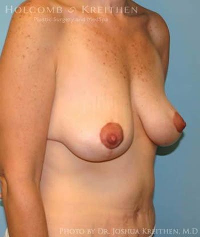 Breast Lift Gallery - Patient 6276584 - Image 4