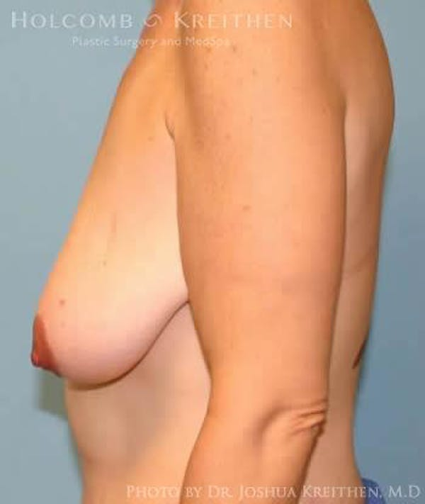 Breast Lift Gallery - Patient 6276584 - Image 5