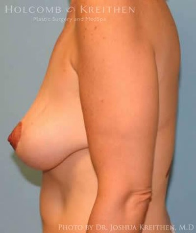 Breast Lift Gallery - Patient 6276584 - Image 6