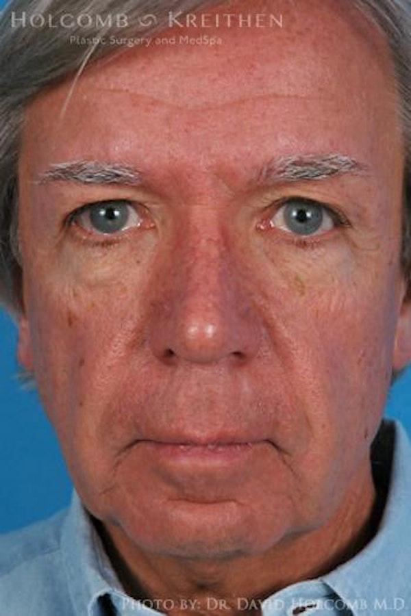 Cheek Implant Gallery - Patient 6279190 - Image 1