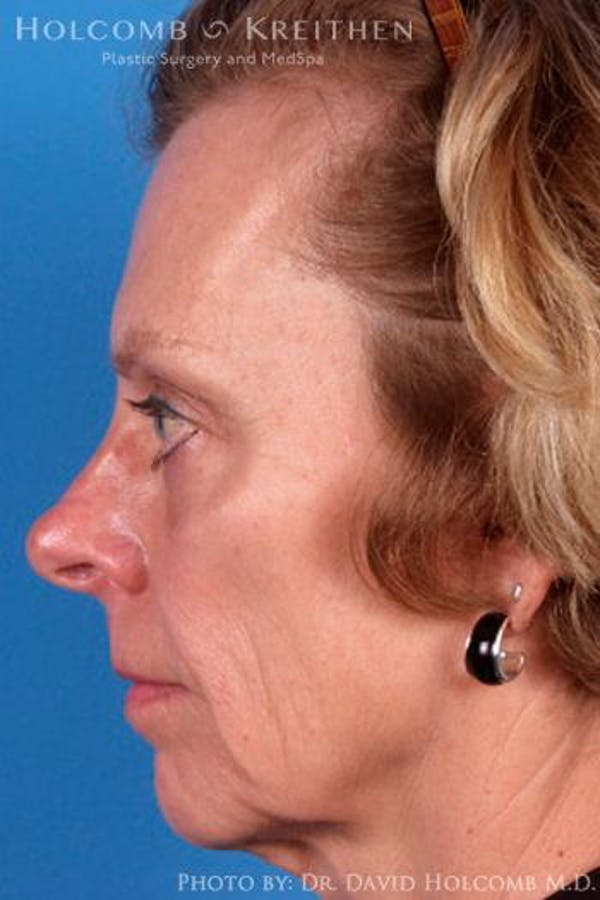 Cheek Implant Gallery - Patient 6279221 - Image 5