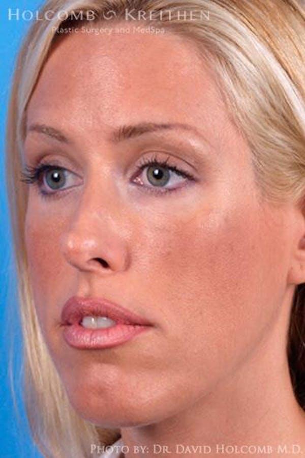 Cheek Implant Gallery - Patient 6279224 - Image 3