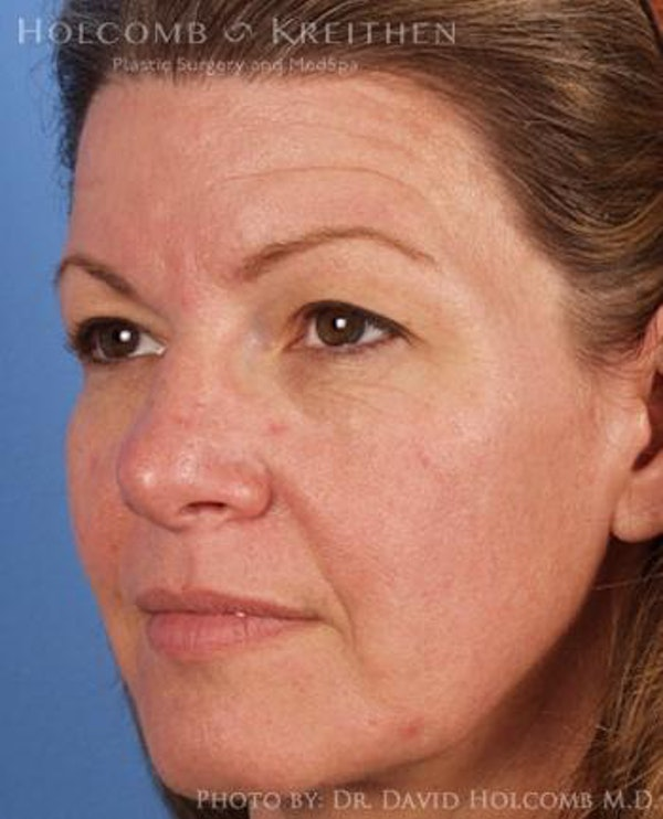 Brow Lift Gallery - Patient 6279225 - Image 3